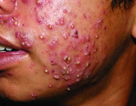 Trattare erbe di acne